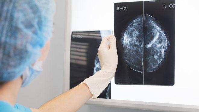 Inteligencia Artificial contra cáncer de mama