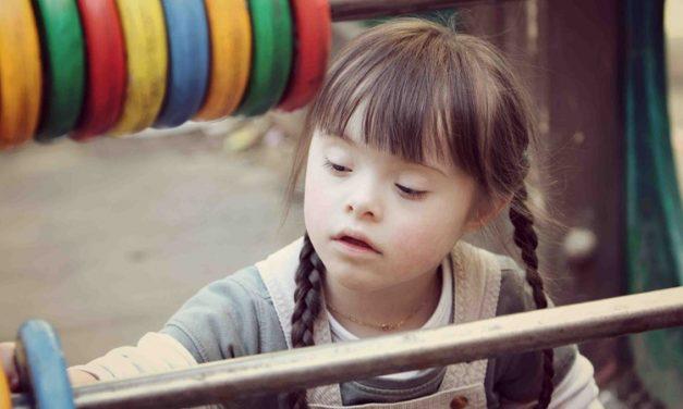 Reflexiones sobre el Síndrome de Down