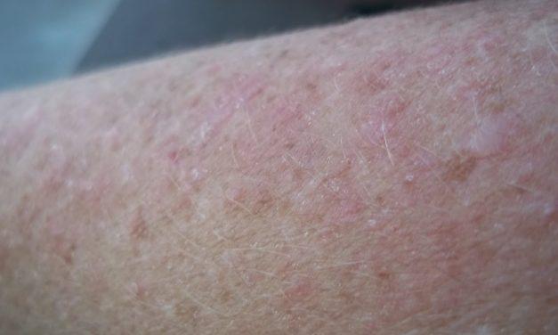 Tengo lupus, el lupus no me tiene